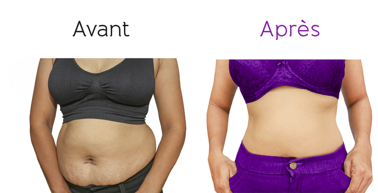 lipocavitation bodysano